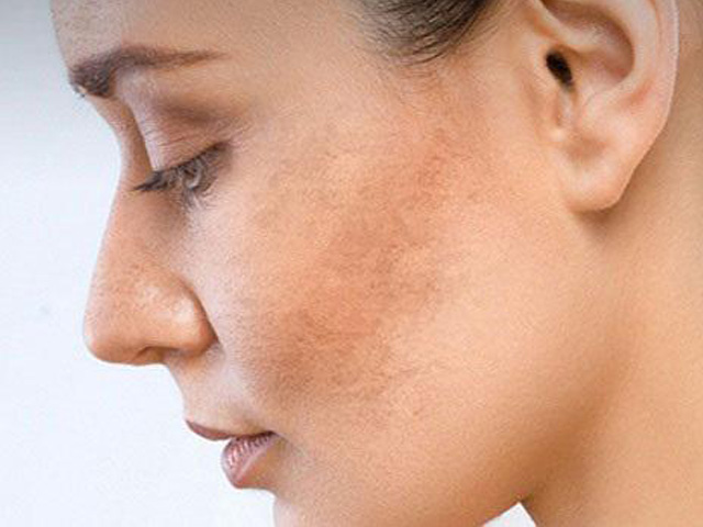 9 thay đổi ở làn da khi mang thai mà mẹ bầu nào cũng gặp phải