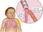 Bé sơ sinh bị khò khè khó thở xử lý như thế nào?