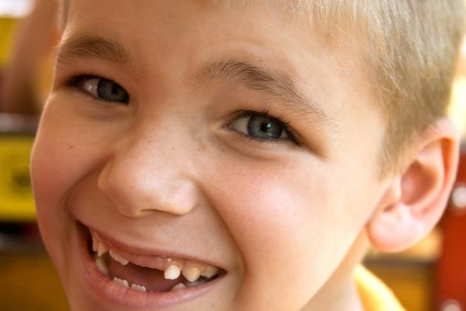 bé trai cười sún răng