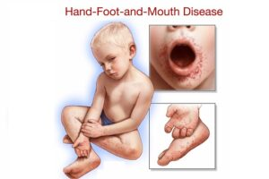 Các bệnh trẻ em thường gặp vào mùa hè mẹ cần lưu ý