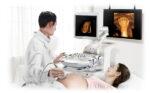Các mốc siêu âm thai nhi quan trọng CẦN THỰC HIỆN