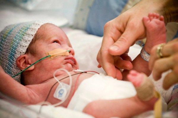 Nguyên nhân trẻ sơ sinh hít ối phân xu và cách phòng ngừa