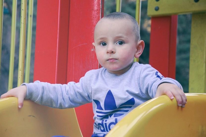 Nguyên nhân và các loại khiếm khuyết bẩm sinh ở trẻ sơ sinh